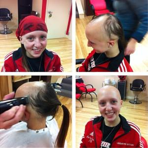 No hair don't care: Zink battles Alopecia