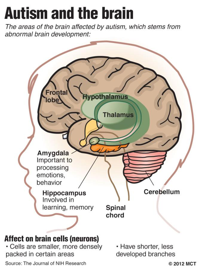 Graphic shows areas of the brain affected by autism.